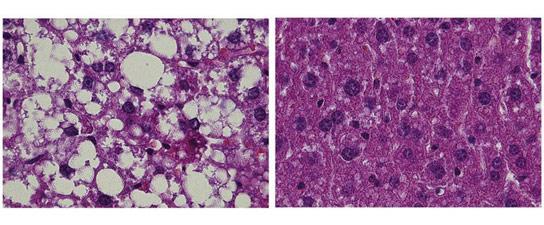 MPI研究人员发现控制脂肪代谢的基因