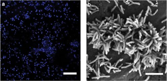 """哈佛大学科学家确定""""吃""""电的微生物"""